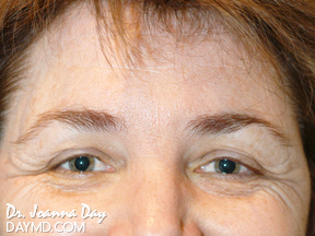 Botox - Before After Photos - Brow Lift / Crows feet Smiling