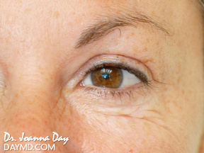 Botox - Before After Photos - Crows Feet Treatment
