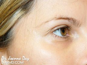 Laser Skin Resurfacing - Before After Photos - Wrinkles