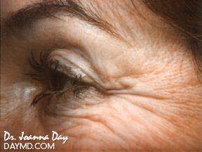 Laser Skin Resurfacing Before After Photos Periorbital